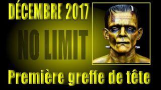 """Décembre 2017, première greffe de tête humaine """"NO LIMIT"""""""
